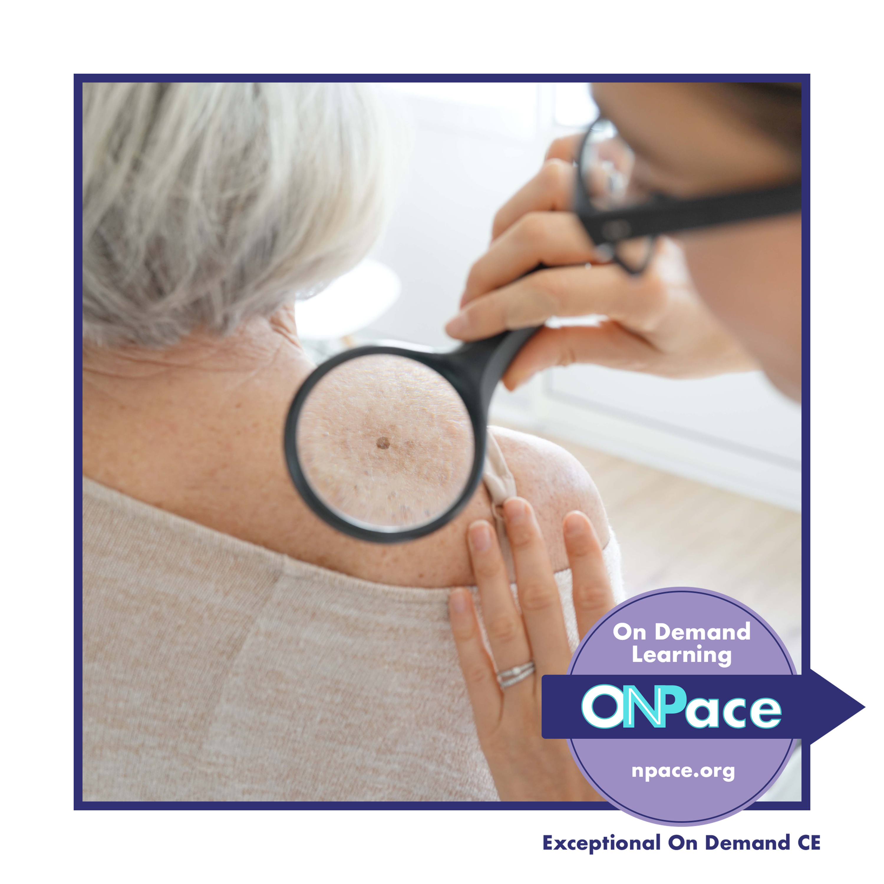 NPACE Common Dermatologic Disorders and How to Manage Them