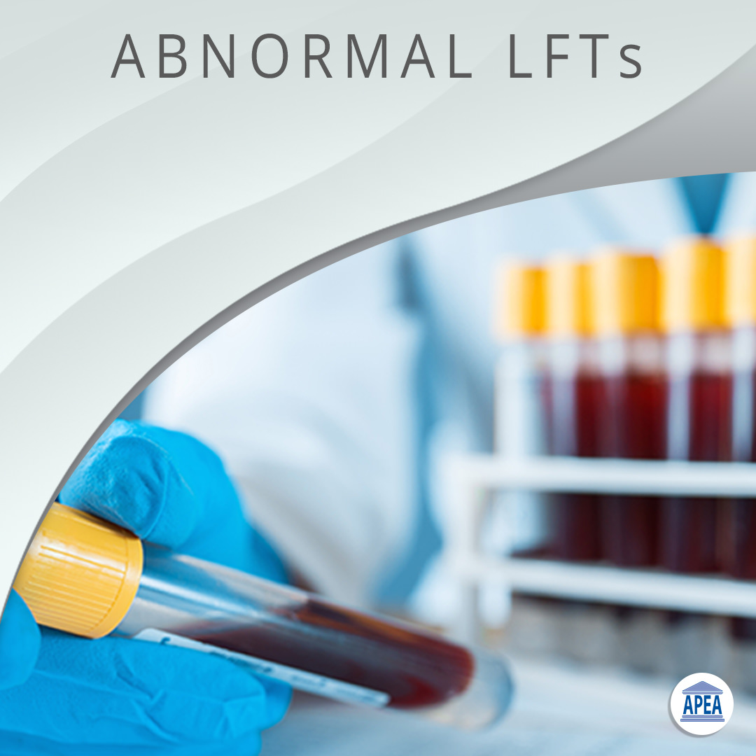 Guidelines for the Management of Abnormal LFTs
