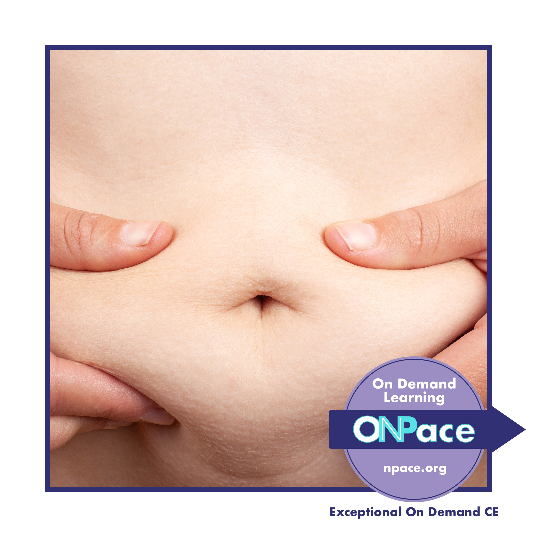 NPACE Obesity Treatment Options