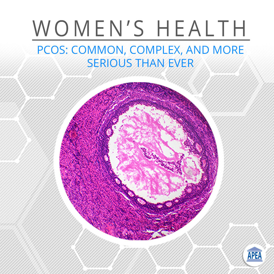 PCOS: Common, Subtle and More Serious Than Ever